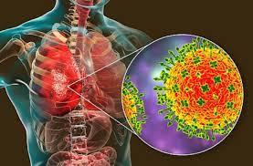 जानलेवा है निपाह वायरस, जानें लक्षण और बचने के तरीके